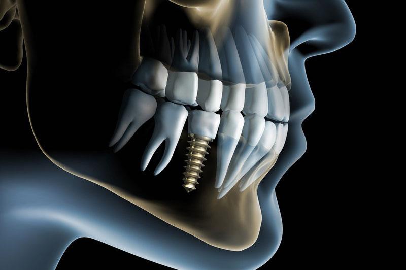 implantologia viterbo
