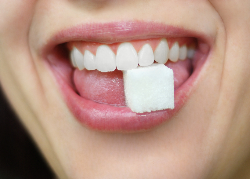 sbiancamento dentale viterbo